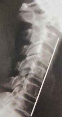 Arthritis neck 2 - phaseoneneck