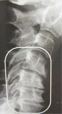 Arthritis nect 3 - neckarthritis